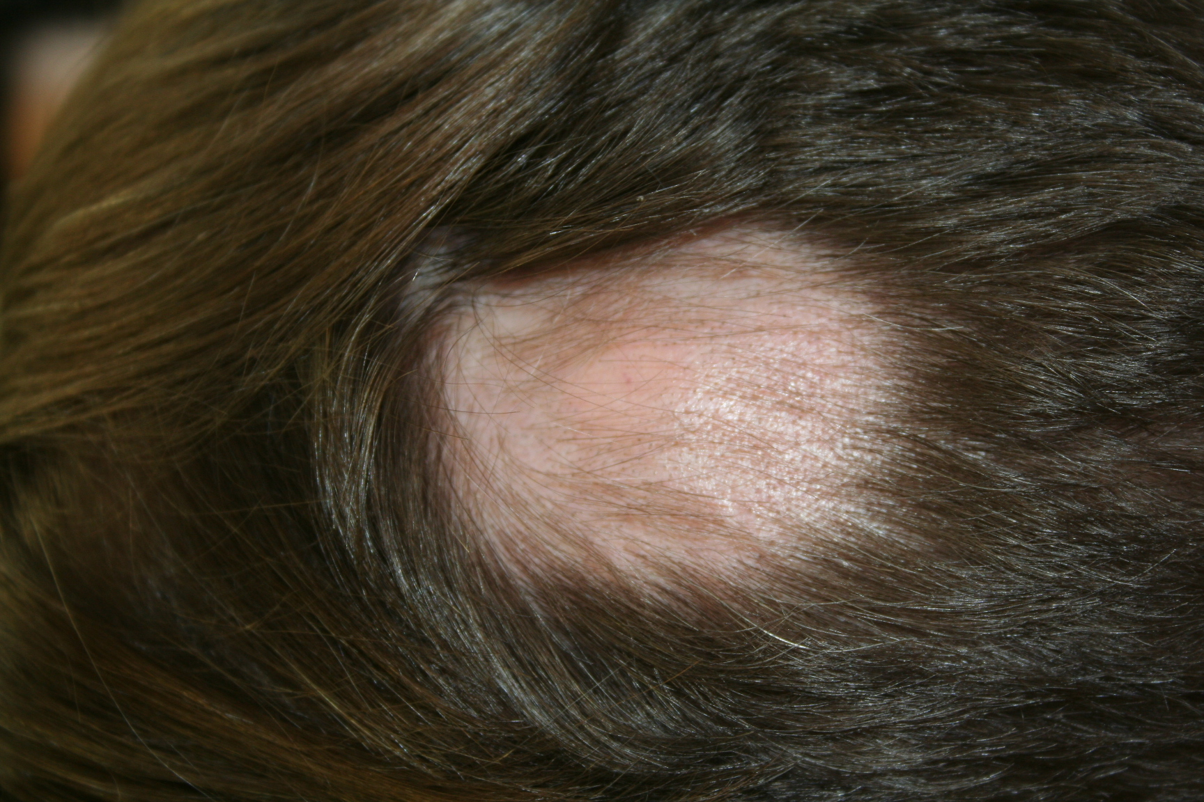 Black hair spot on head